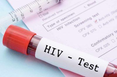 AIDS Testi Yapabilen USB Bellek Geliştirildi